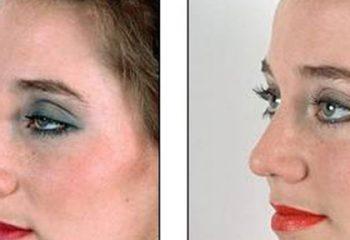 Estetik ile gelen güzellik hakkında