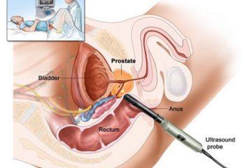 Prostat hastalığı