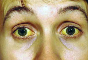 Sarılık hastalığı