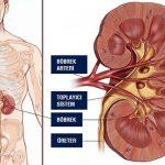 Böbrek ağrısı nedenleri nelerdir?